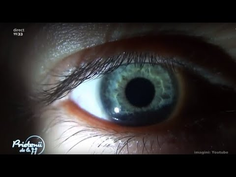 paraziti in ochi