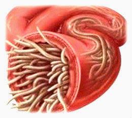 Enfermedades que causan los oxiuros Helminti Enterobius