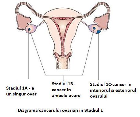 cancerul de ovare paraziti v konecniku