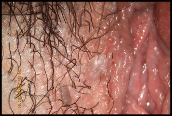 Papilloma virus genitale sintomi Parazity v tele ako sa ich zbavit