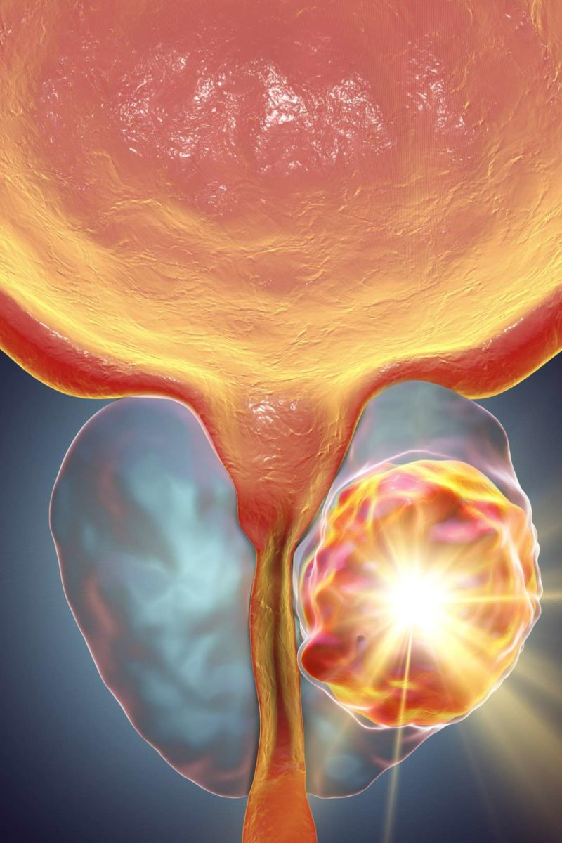 Aggressive cancer in humans Prostate albastru tratament intestinal