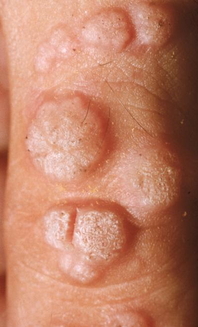 papilloma vs wart