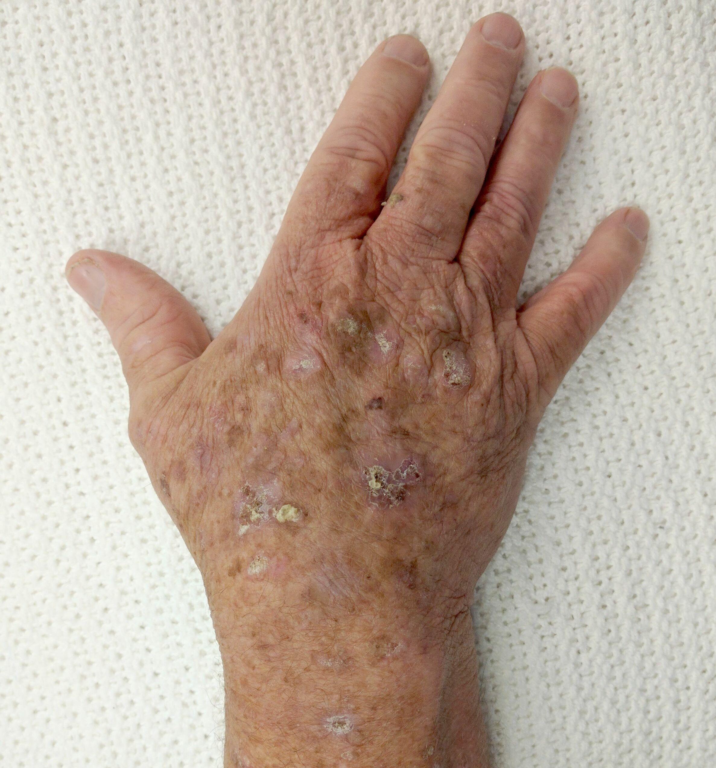 hpv lesions cream