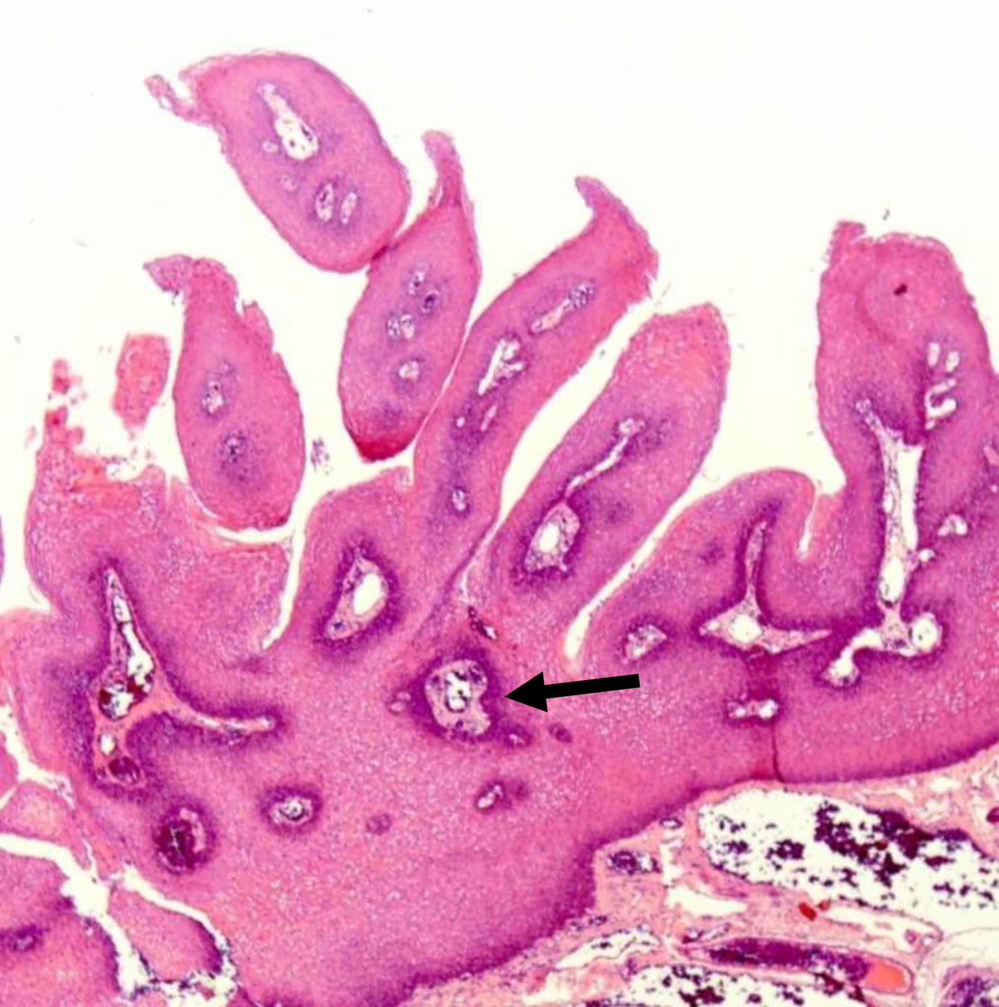 squamous papilloma uvula hpv scaly skin