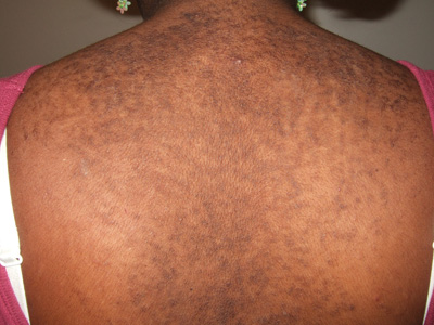 reticulated papillomatosis causes)