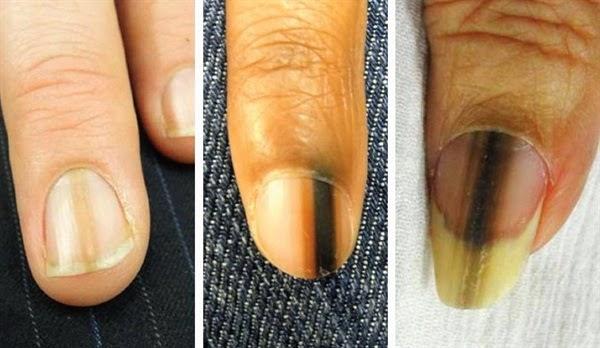 cancer unghii piele