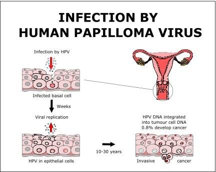 human papillomavirus infection goes away)
