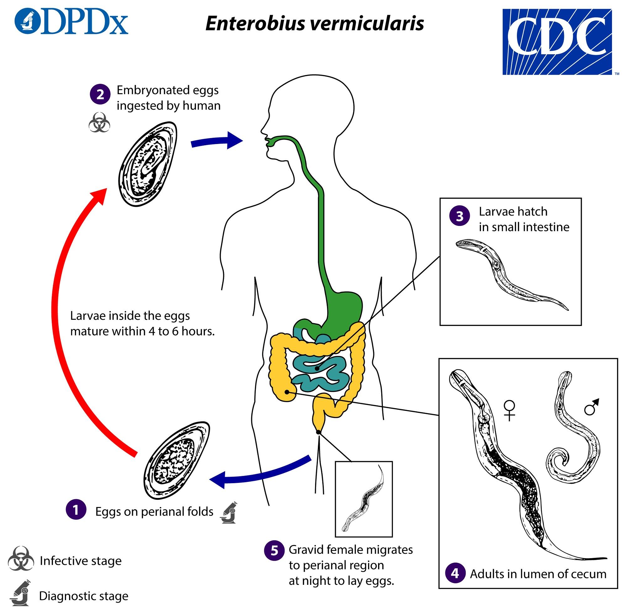 enterobius vermicularis eggs)