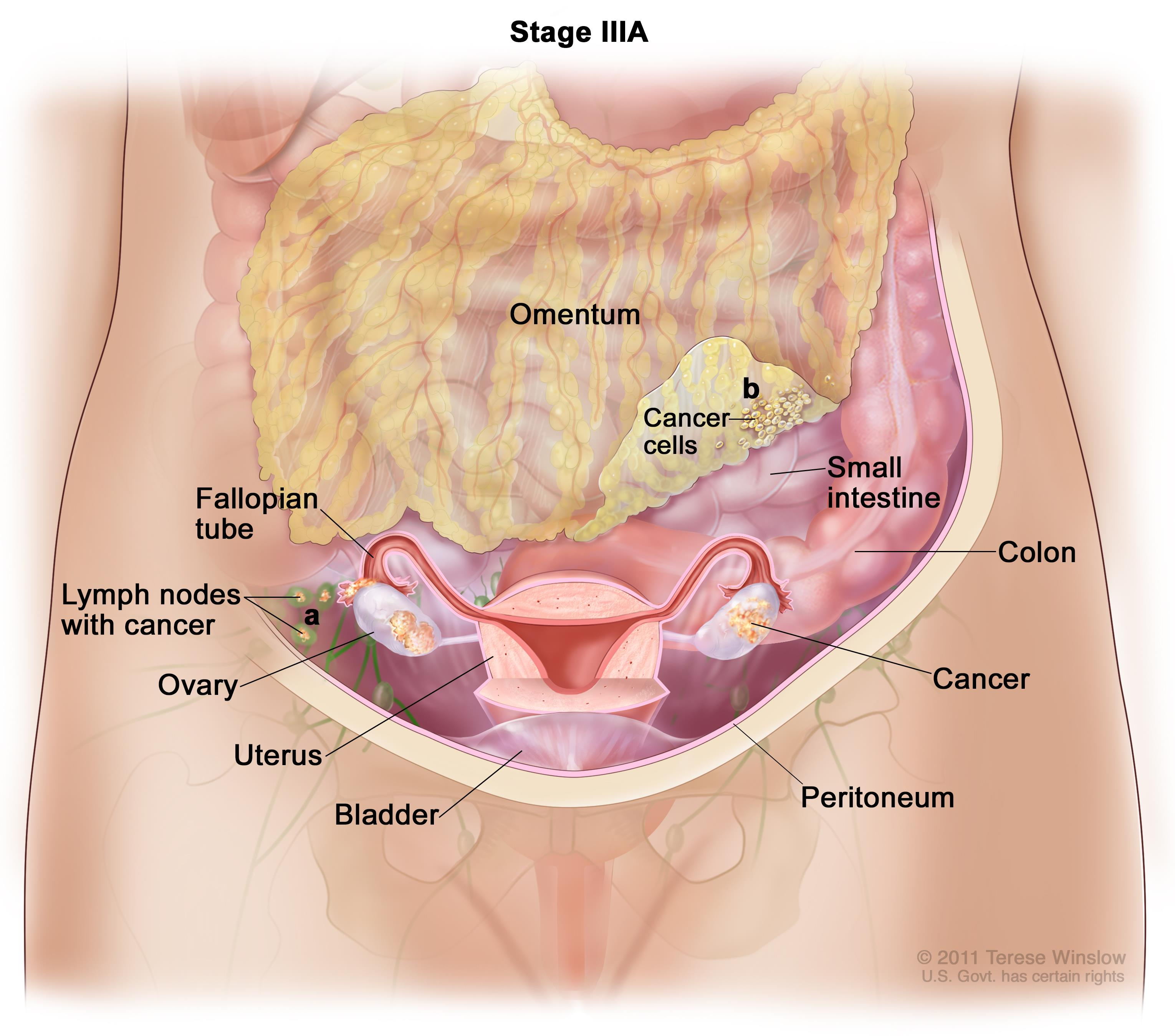peritoneal cancer death