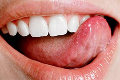 hpv virus nyelven simptomele bărbierilor