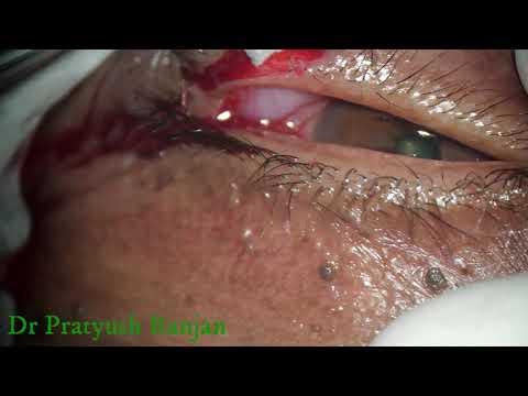 hpv virus kezelese