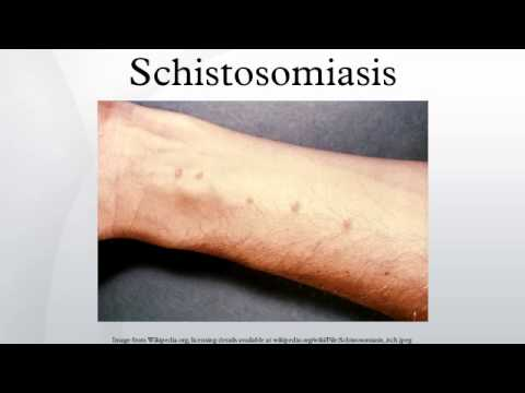 schistosomiasis symptoms)