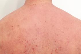 eczema - Traducere în franceză - exemple în română | Reverso Context