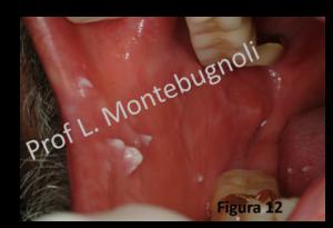 papilloma virus uomo sintomi gola