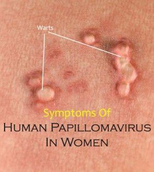 signs of human papillomavirus)