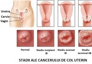 cancerul de ovare cauze)