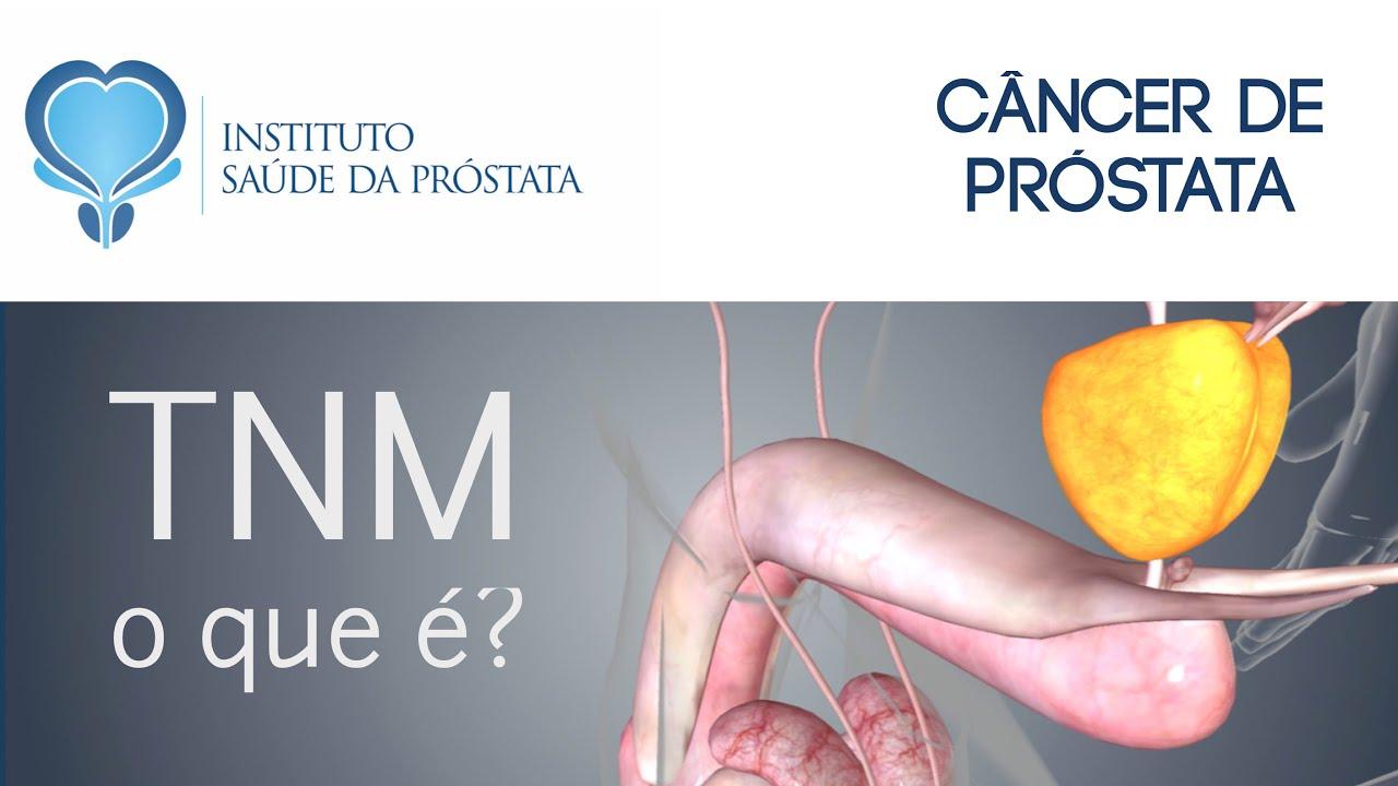 cancer de prostata grau 7)