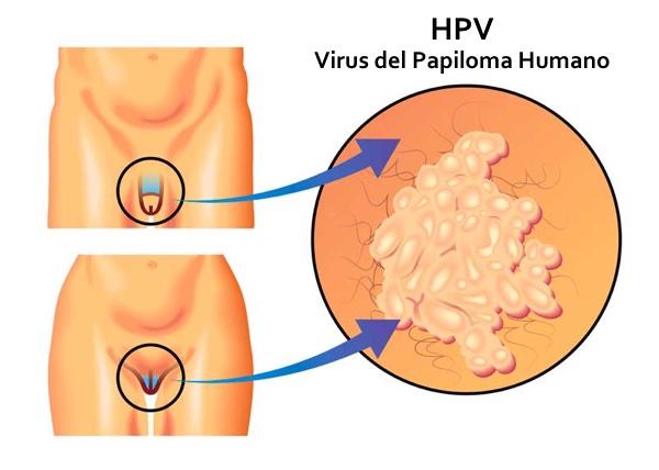 Papiloma virus verruga genital. Vaccin papillomavirus oui ou non