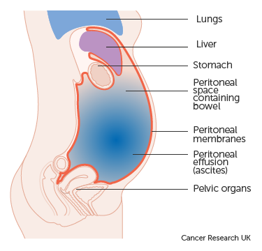 cancer of abdominal cavity