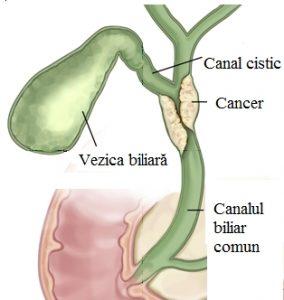 Cancerul ductului biliar - divastudio.ro