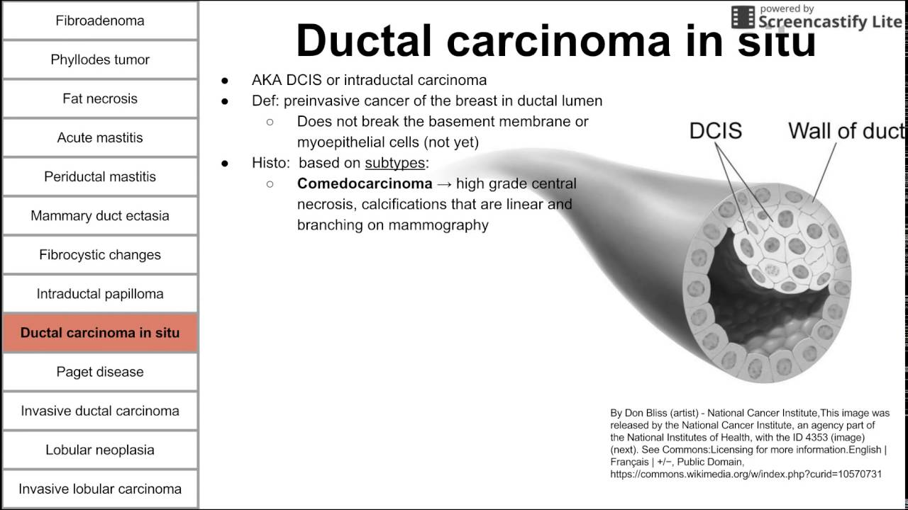 duct papilloma cancer