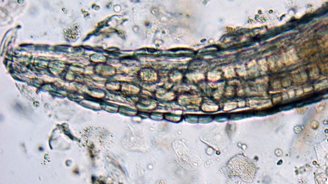 paraziti gongylonema pulchrum)