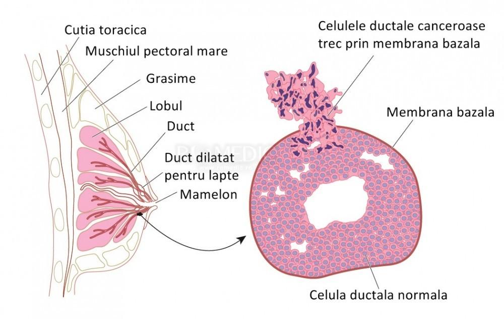 tratamentul virusului papiloma la medicamentele pentru femei