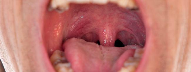 lesion de papiloma en boca)