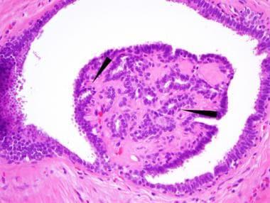 ductal papilloma histology)