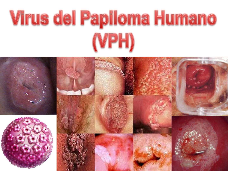 crema papiloma virus