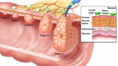 cancer la colon barbati simptome