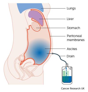 peritoneal cancer kya hai)