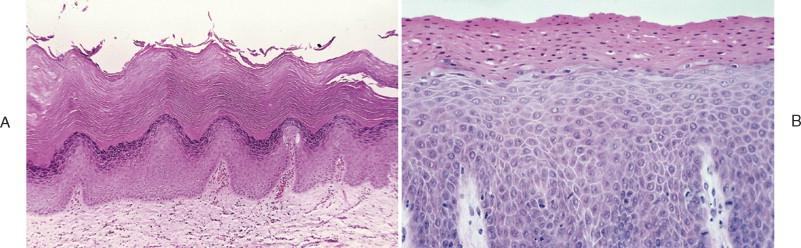 mild papillomatosis and hyperkeratosis