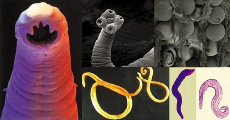 paraziti v organismu)