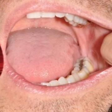 Sintomas cancer garganta por virus papiloma humano