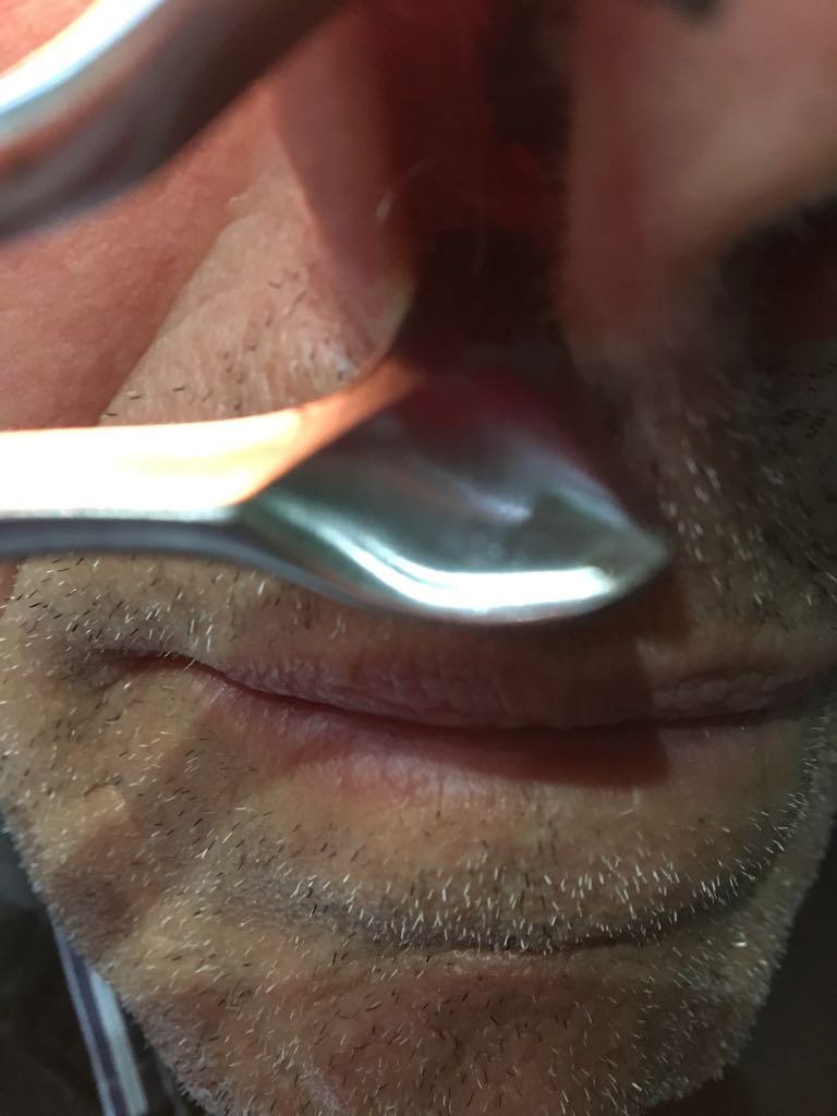 Tumora la nivelul gurii Papilloma ugola immagini