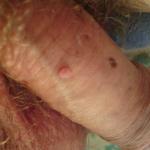 papillomavirus verrue homme