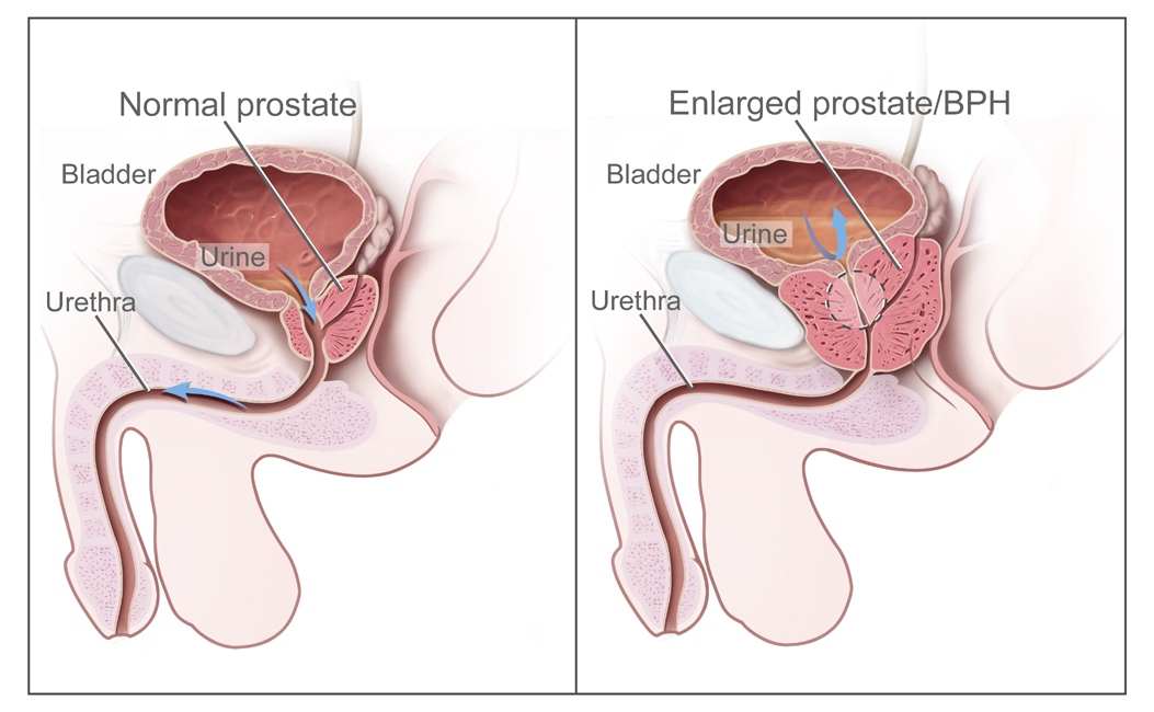 cancer de prostata ultima etapa