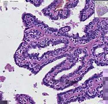 ductal papilloma histology