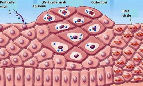 tumore papilloma virus uomo hpv virus on throat