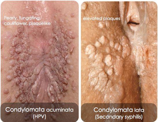 condyloma acuminatum vs hpv