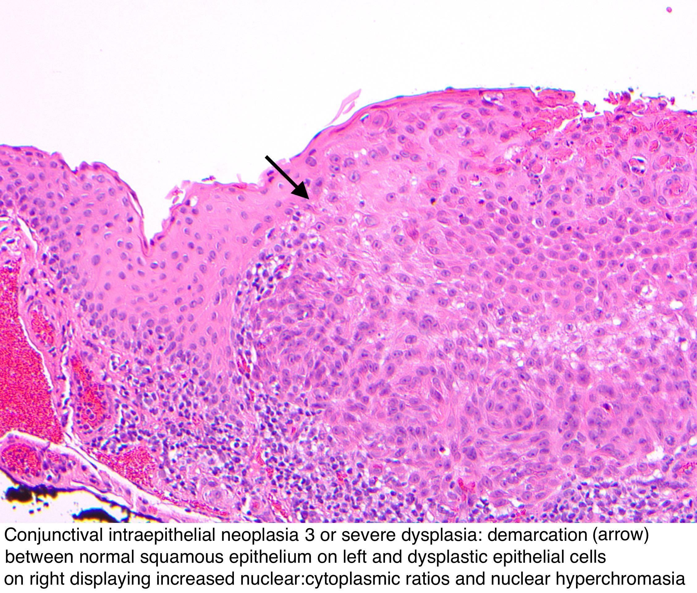 conjunctiva papilloma pathology