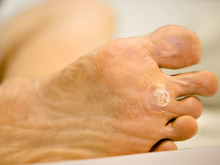 wart removal foot doctor
