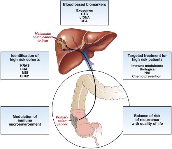 metastatic cancer colon liver)