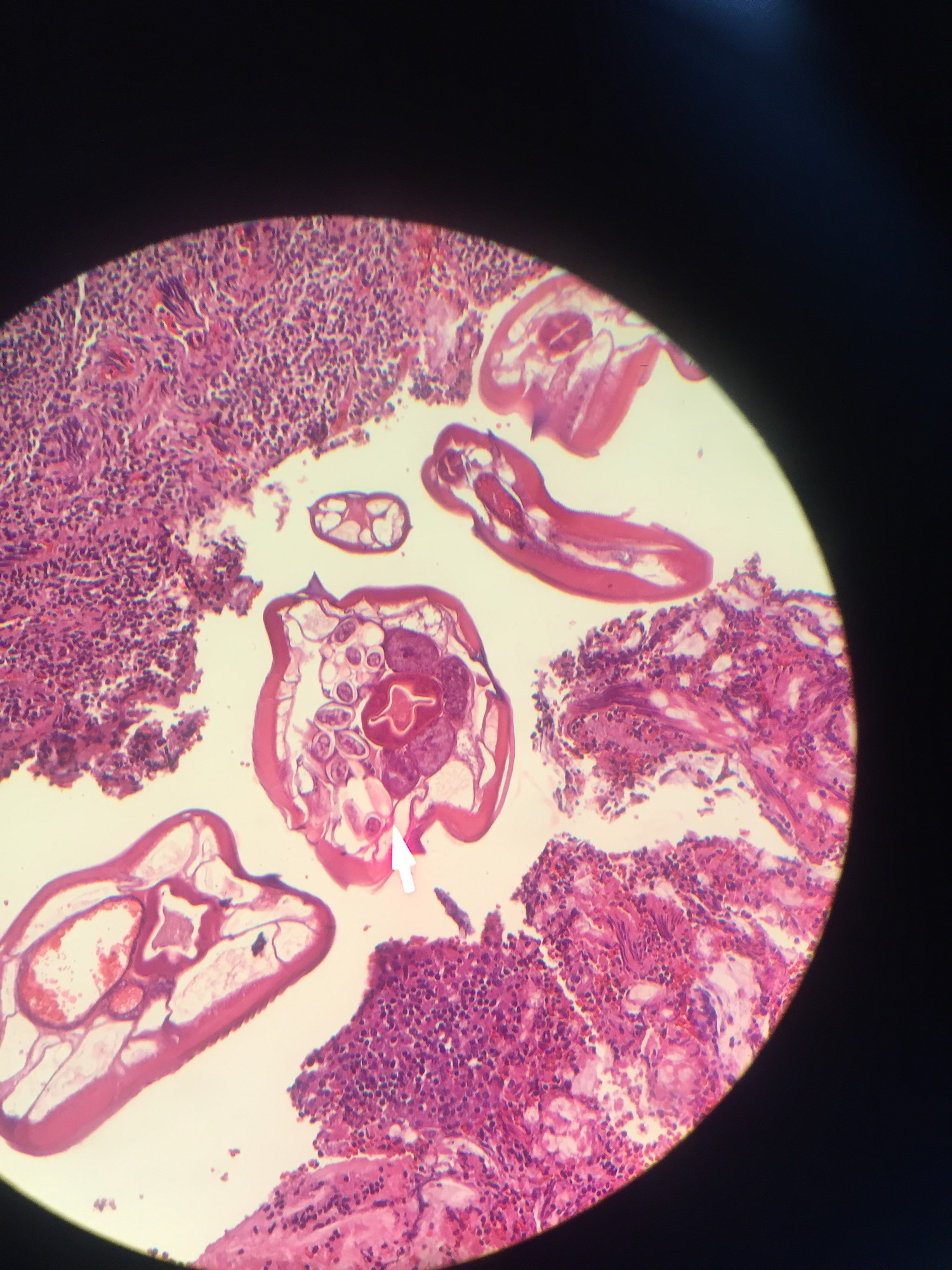enterobius vermicularis appendix histology)