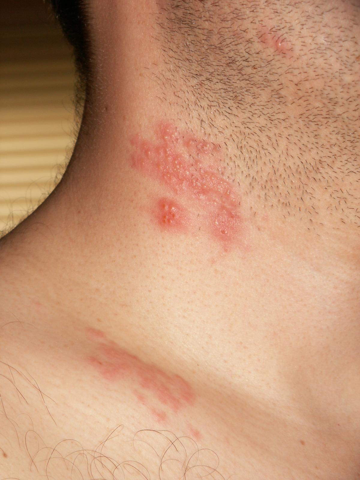 hpv on the skin rash