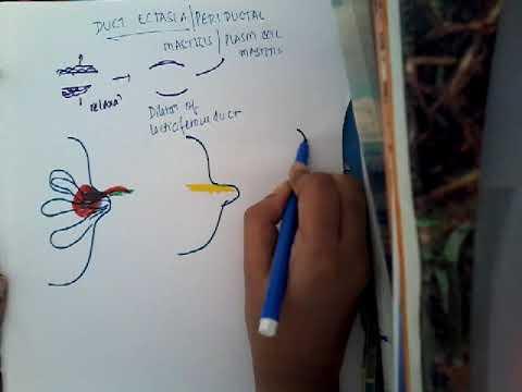 papilloma squamoso definizione