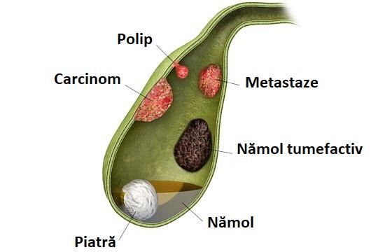 tratamentul paraziților vezicii biliare