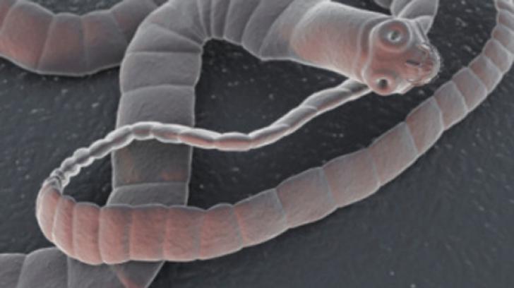 Vierme parazit