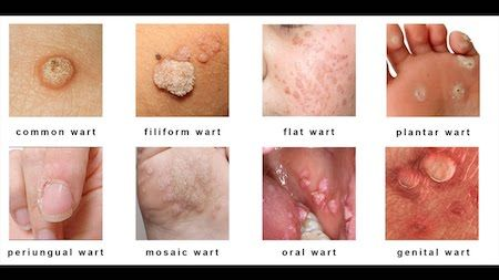 Hpv and warts